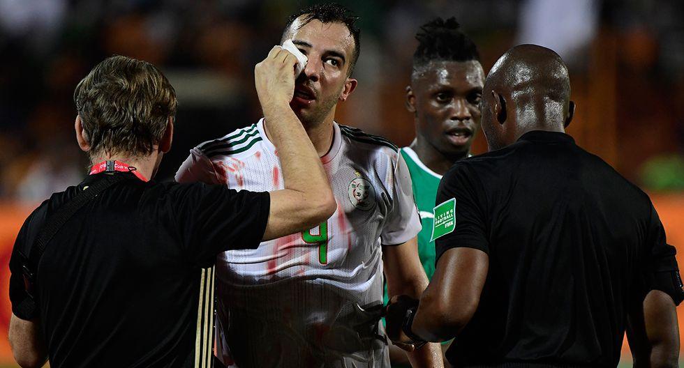Mira el terrible choque de cabezas en la final de la Copa Africana de Naciones. (Foto: AFP / Video: TMC - Youtube)